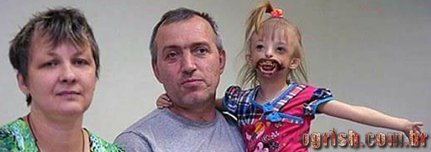 Criança que nasceu sem os lábios e os ossos da boca